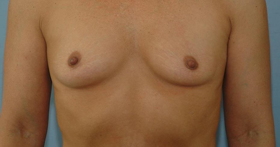 breast21
