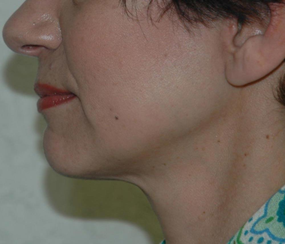 neck5